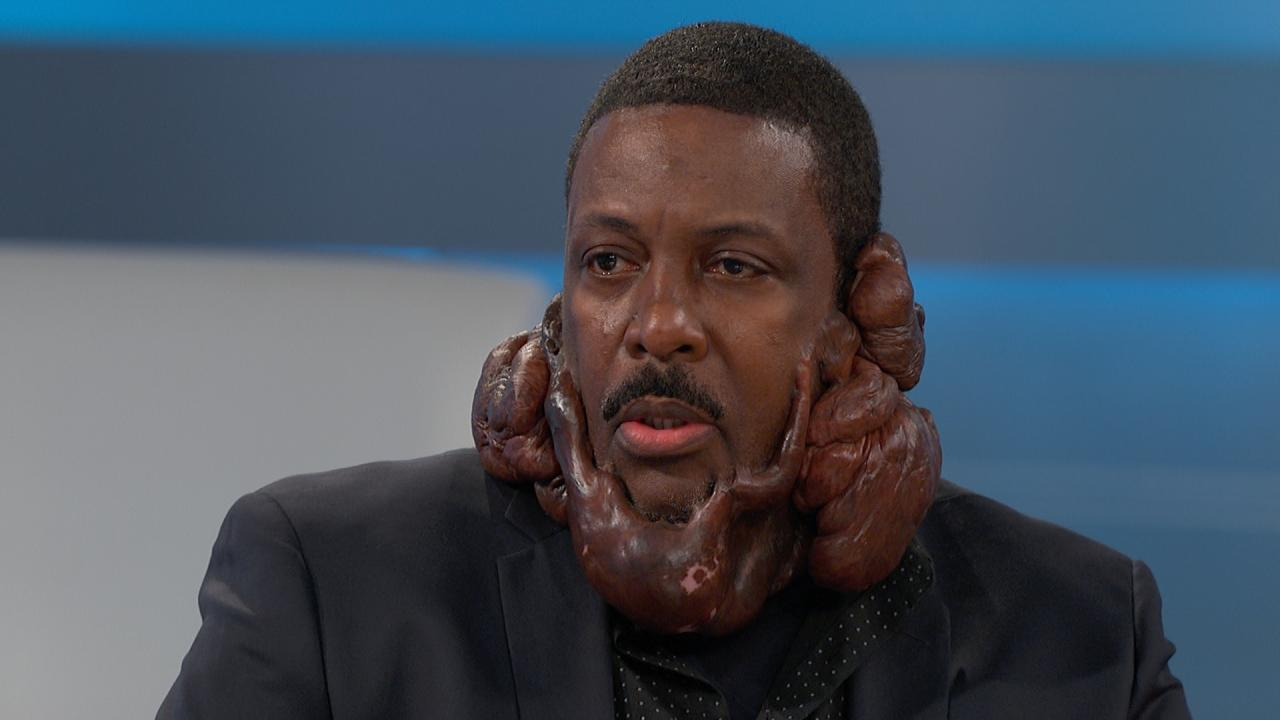 Save My Face From Keloids The Doctors Tv Show