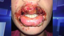 Lips with herpes