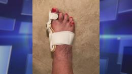 Device claiming to fix bunions