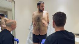 John revealing his excess skin prior to his removal surgery