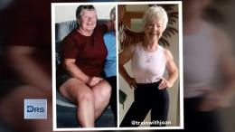 70-year old before and after weight loss