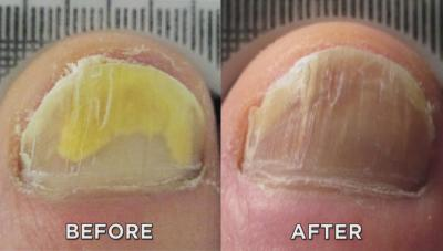 Toenail with and without fungus