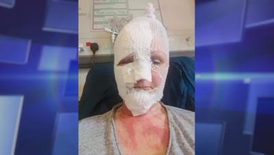 Woman bandaged after egg explodes in her face