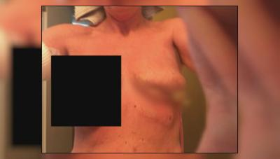 Woman's botched chest