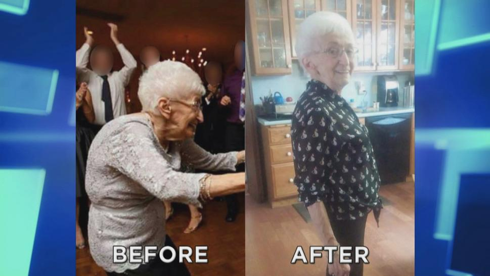 Before and after of older woman with curvature in back and then standing straight after yoga treatments