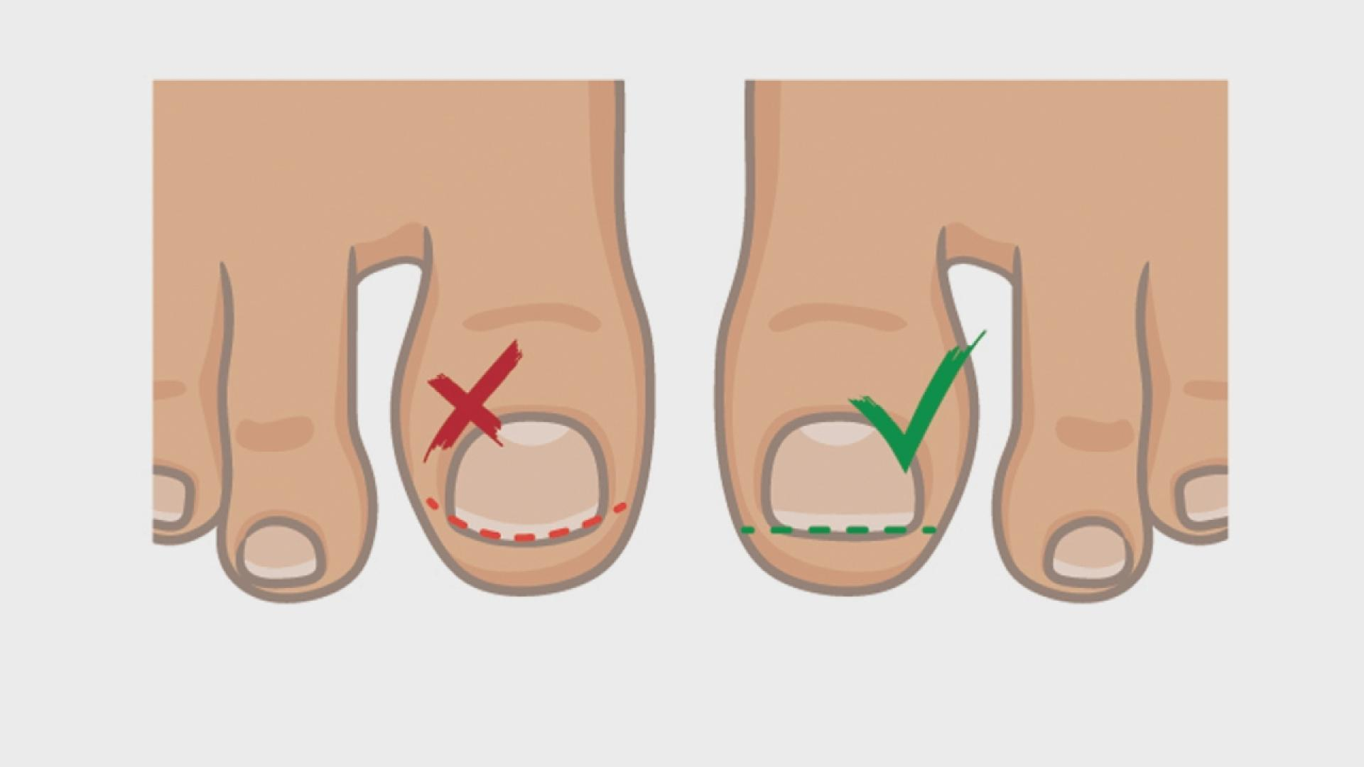 How To Best Handle And Treat An Ingrown Toenail The